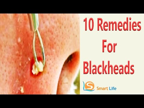 Top 10 Home Remedies For Blackheads And Whiteheads Removal