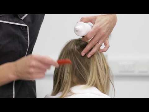 Treating scalp psoriasis