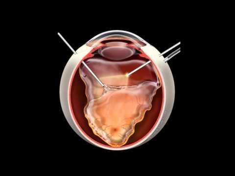 Retinal Detachment | Signs, Symptoms and Treatment