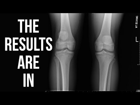 I LITERALLY CANNOT BELIEVE MY MRI RESULTS | nz vlog 4