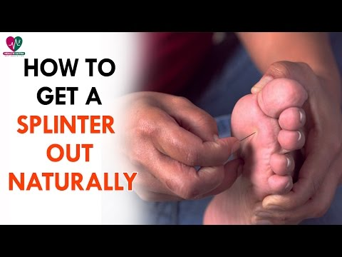 How To Get A Splinter Out Naturally - Health Sutra
