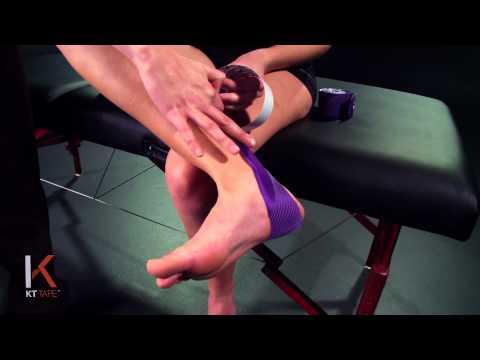 KT Tape: Posterior Shin Splints
