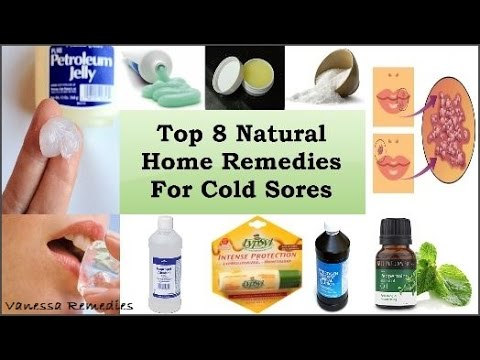 How To Get Rid Of A Cold Sore: Top 8 Natural Home Remedies For Cold Sores