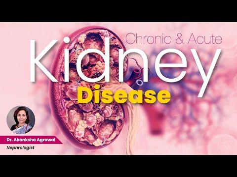 Kidney Disease (Chronic and Acute) - Dr  Akanksha Aggarwal, Nephrologist