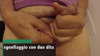 Protesi peniene aspetti post operatori - Dr. Diego Pozza