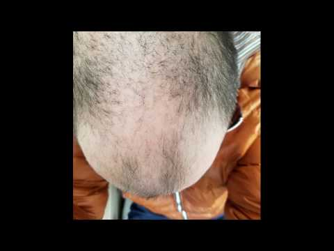 AMAZING male pattern baldness hair loss recovery