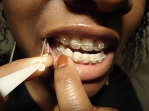 How to Put Rubberbands on Braces