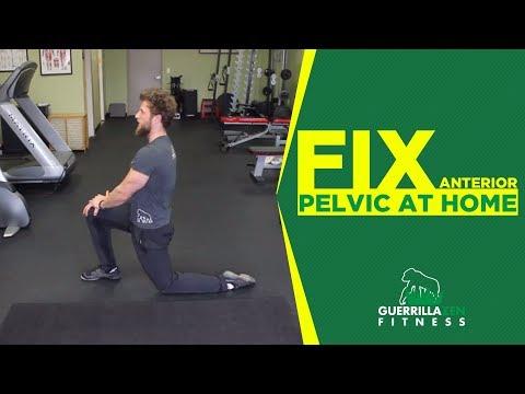 Anterior Pelvic Tilt Correction | Do These AT HOME!
