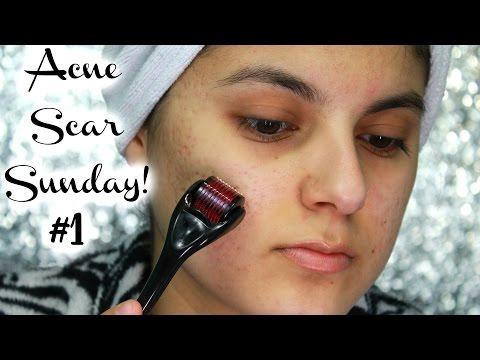Acne Scar Sunday #1: Derma Roller Week 1