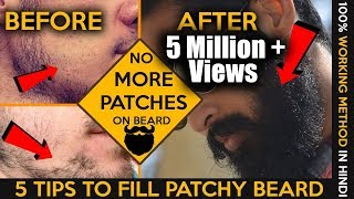 2017 How to fill patchy beard  | Homemade tips | Patchy beard fix in hindi | Fashionable Brat Rg