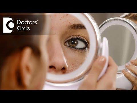 Do irregular periods with acne indicate pregnancy or premenstrual symptom? - Dr. Shailaja N