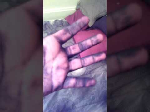 Purple hair dye stained my hands