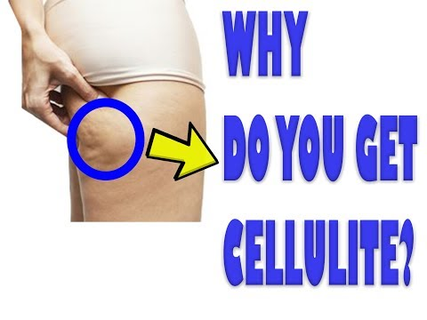 cellulite - what is it and what causes it?
