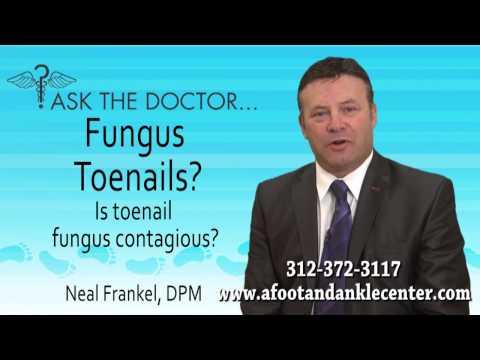 Is Toenail Fungus Contagious? Chicago, Lincolnwood, Oak Brook, IL - Podiatrist Neal Frankel