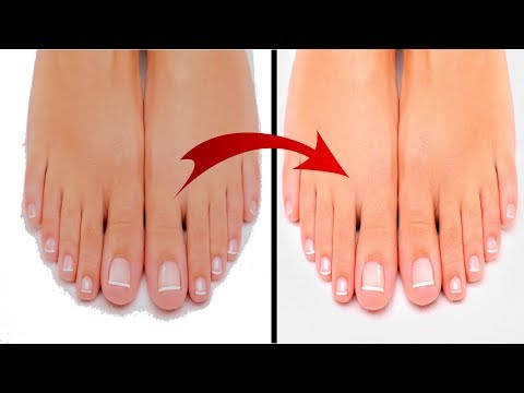 Sun Tan Home Remedies / How to Remove Sun Tanning from the Feet / Feet Whitening
