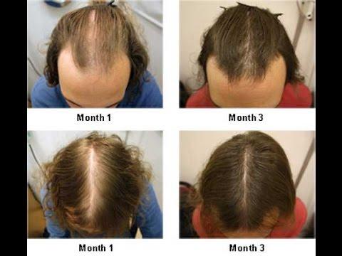 Hair Loss Treatment| Natural Hair Growth| How To Stop Hair Loss| How To Regrow Hair