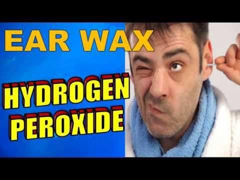 How to Use Hydrogen Peroxide To Remove Ear Wax
