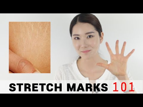 5 Essential Tips for Stretch Marks | Wishtrend