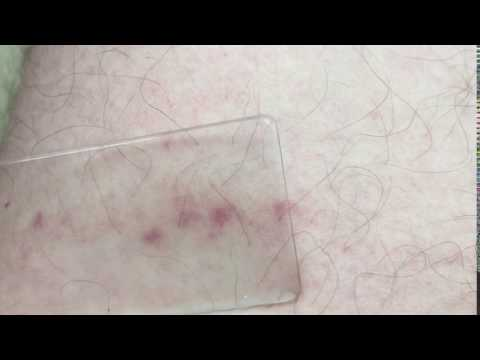Glass test - Meningitis rash