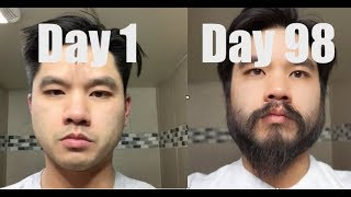 I Grew Out My Beard For 3 Months Using Minoxidil (Rogaine)