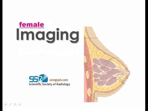 breast implants - Prof Dr. Rasha Kamal (In Arabic)