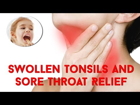 Cure Swollen Tonsils And Sore Throat Relief In Only 10 Hours | Tonsillitis Home Remedies