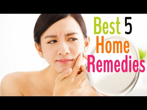 How to Get Rid of Acne & Acne Scars FAST!! - How to Get Rid of Acne & Acne Scars FAST!!