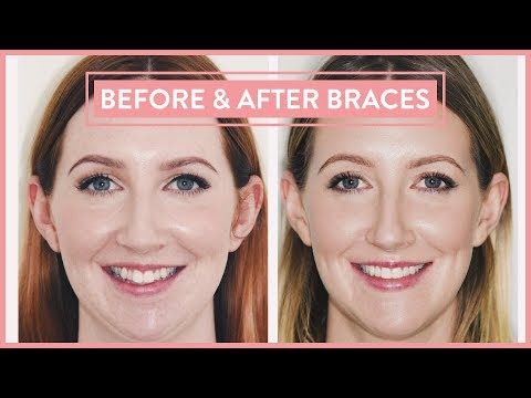 BEFORE & AFTER BRACES | Lingual Braces & Jaw Surgery Experience PART 4