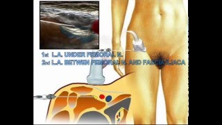 lsora: ultrasound guided femoral nerve block tutorial - blue ray, Muscles