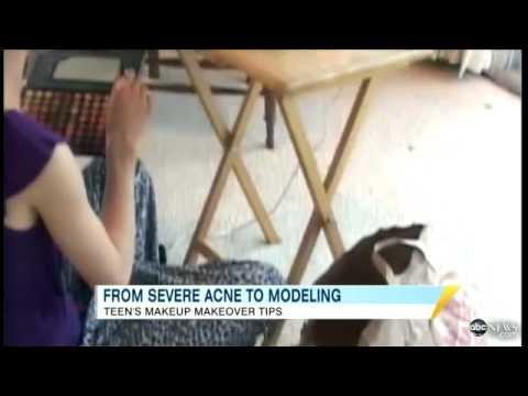 Teen's Anti Acne Makeup Routine: Cassandra Bankson