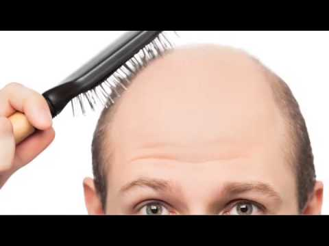 Male Pattern Baldness Boston - New England Center for Hair Restoration