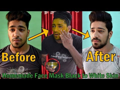 How to Get Black to White Skin at Home | Remove Dark Spots, Acne, Pimples in 1 week Naturally