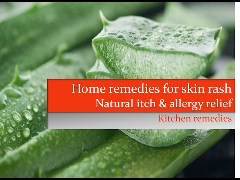 7 Home remedies for skin rash | Natural allergy & itch relief using organic kitchen ingredients |