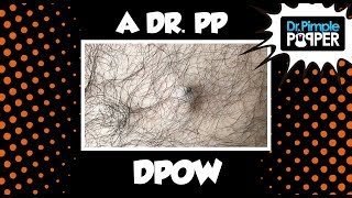 The Jungle Is Dark, but Full of Diamonds... A Dr Pimple Popper DPOW
