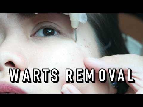 WARTS REMOVAL (LETS FACE IT) | VLOG