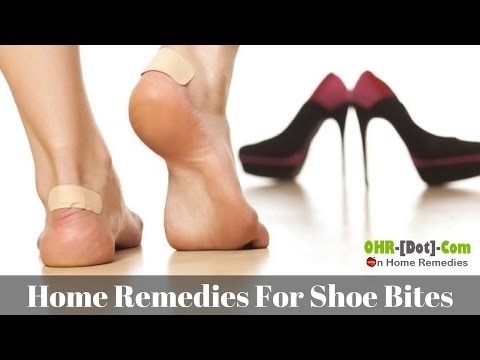 9 Effective Home Remedies for Shoe Bites