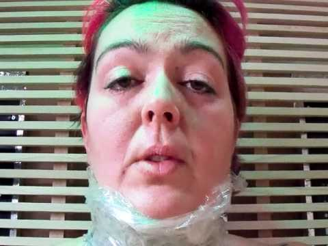 Healing Leukemia #9 ~ What I Do For Swollen Lymph Nodes in Neck, Head, Jaw