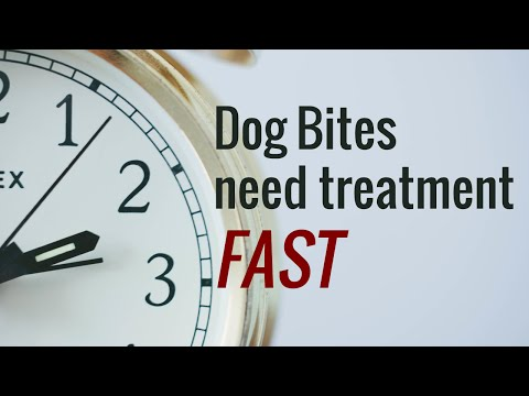 Dog Bite, the Importance of Treatment by Bakersfield Family Physician Jan Mensink MD