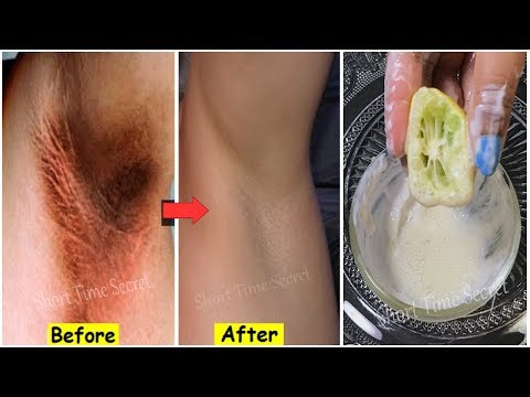 In Just 5 Minutes Lighten Your Dark Underarm Naturally & Fast | Whiten Dark Underarms Permanently