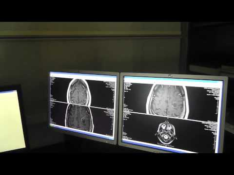 Laura Hymas MRI results with Dr Burzynski