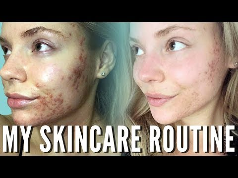 My Favorite Products for Active Acne and Scarring
