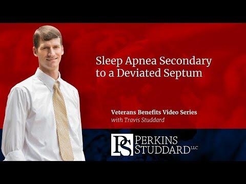 Sleep Apnea Secondary to a Deviated Septum
