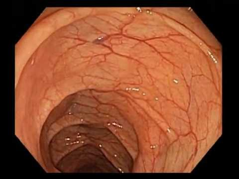Colonoscopy Channel - Colonoscopy Screening - Excellent quality of colon preparation