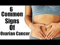 6 Common Signs Of Ovarian Cancer Most Women Ignore