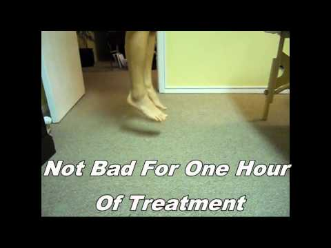 Amazing Ankle Sprain treatment - painfree with two hours in the clinic