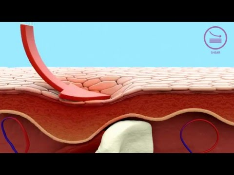 How Mepilex® Border dressings help in pressure ulcer prevention