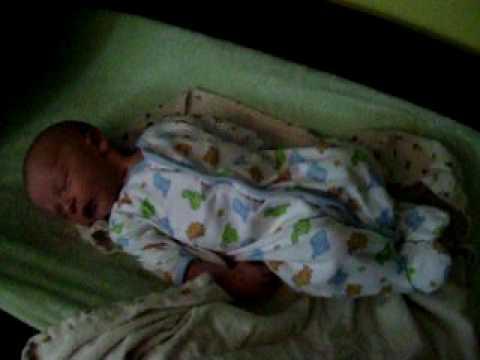 Benign Neonatal Sleep Myoclonus