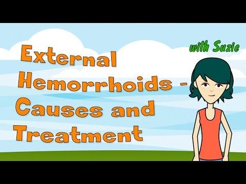 External Hemorrhoids - Causes and Treatment