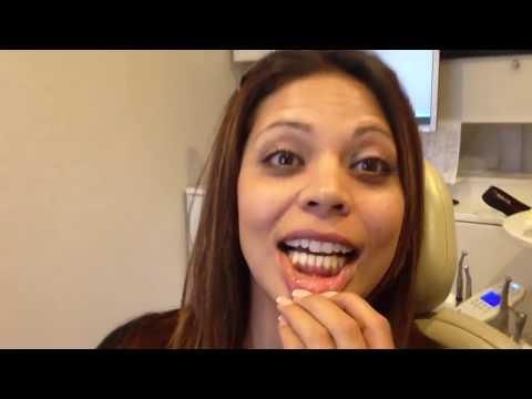 Gingival Pigmentation Removal (Dark Gums) | Gummy Smile Review
