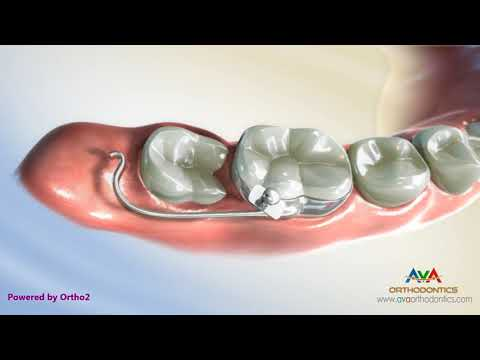Uprighting Impacted Second Molar - Orthodontic Treatment